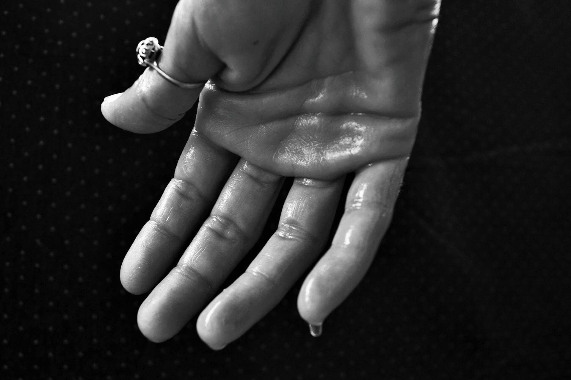 hiperhidroza-ili-pojacano-znojenje